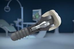 3D Animationen von Zahnimplantaten